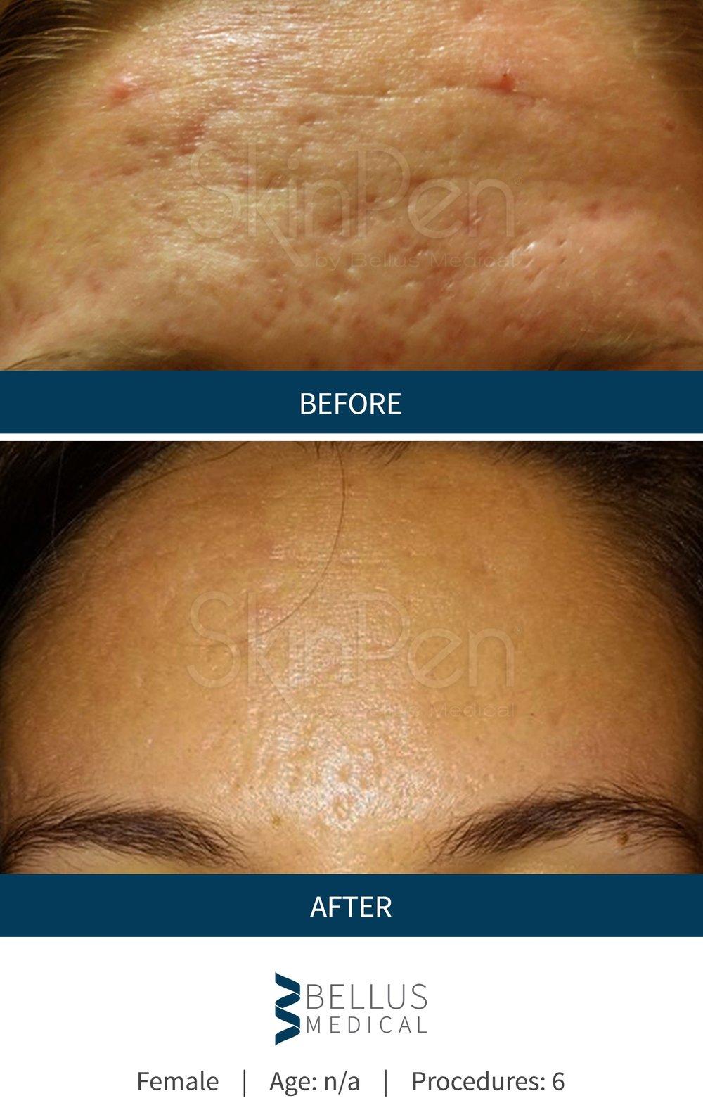 b-a-pores.jpg