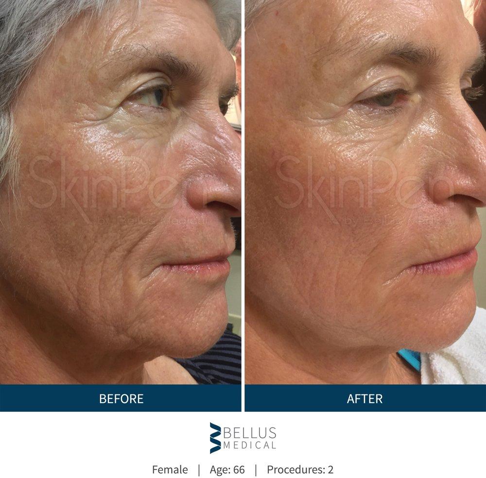 b-a-wrinkles.jpg