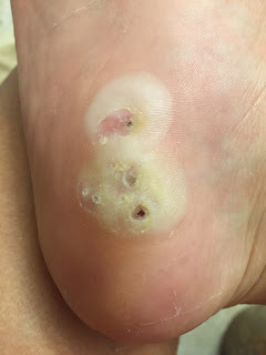 How to Remove Plantar Warts Naturally — ArtSea Chic
