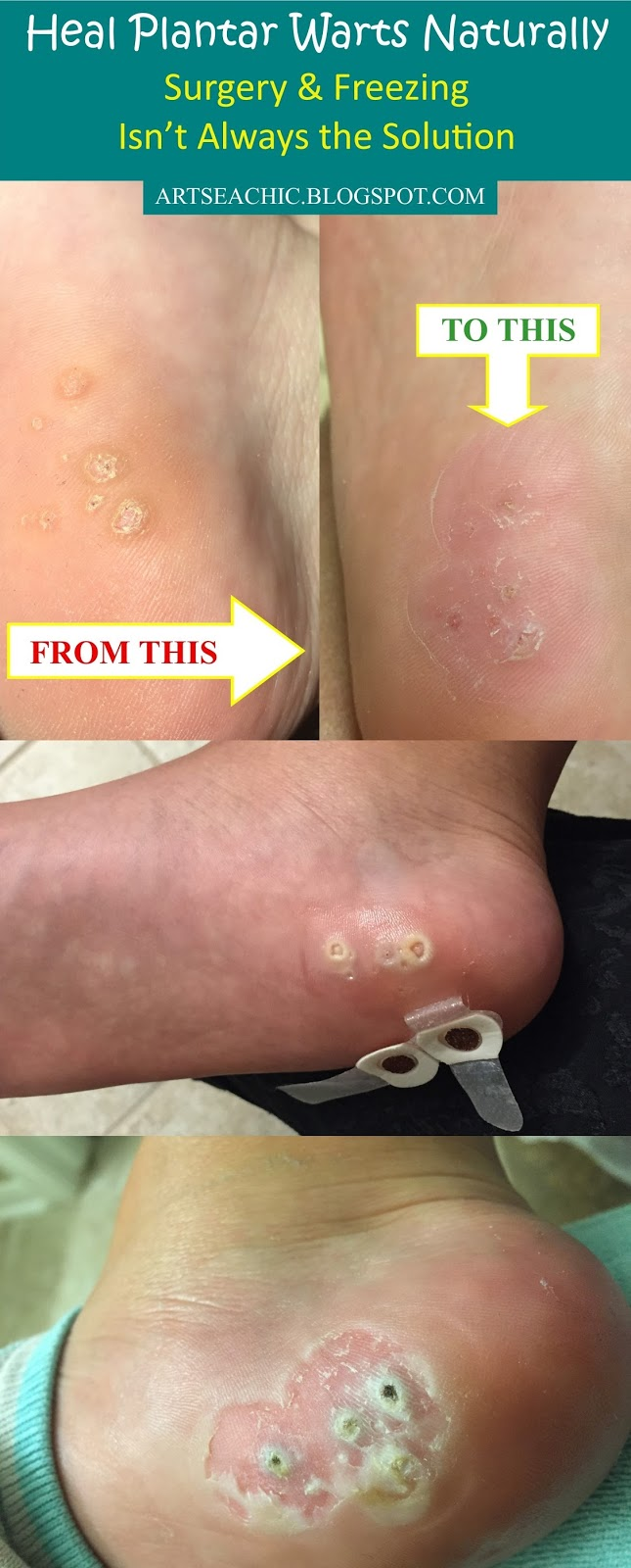 How To Remove Plantar Warts Naturally Artsea Chic
