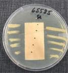 Un tissu traité avec SilverClear® montrant, respectivement, aucune inhibition périphérique et une zone mesurable d'inhibition