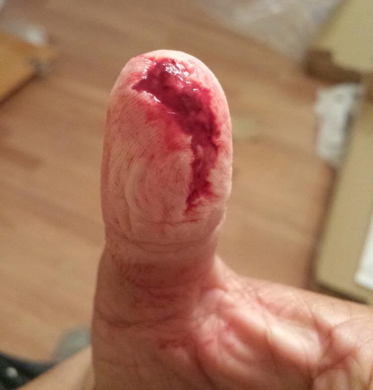 fingerCut-3.jpg