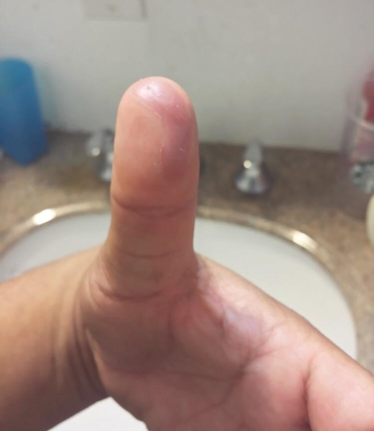 fingerCut-10.jpg