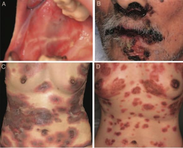 Autoimmune and infectious skin diseases that target desmogleins.Masayuki AMAGAI.Proc Jpn Acad Ser B Phys Biol Sci. 2010 May 11; 86(5): 524–537.