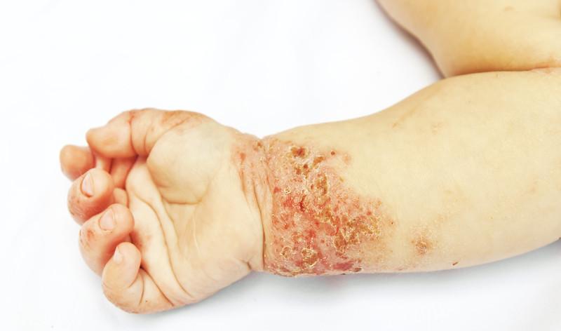 Dermatitis atópica. © Can Stock Photo Inc. / OlegKalina
