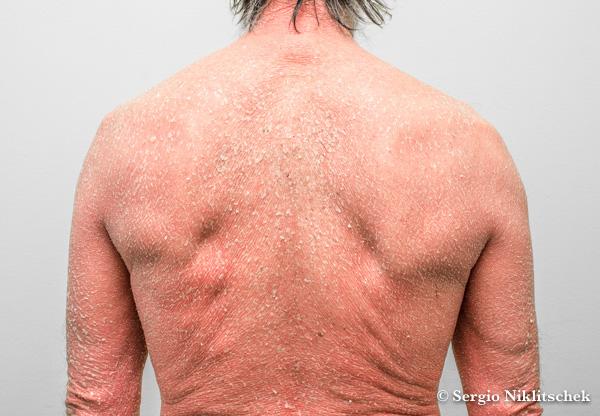 Psoriasis Eritrodérmica | Psoriasis Severa