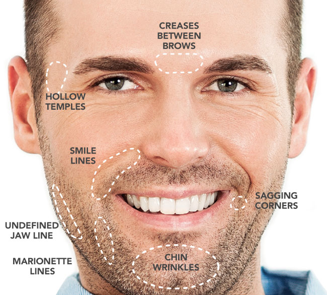 DERMAL FILLERS FOR MEN
