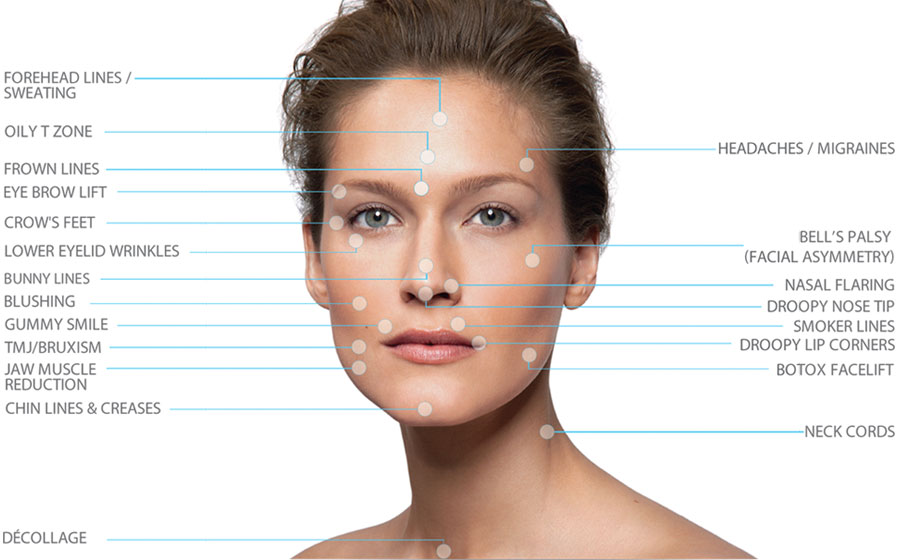 INDICATIONS FOR THE INJECTION OF BOTOX COSMETIC