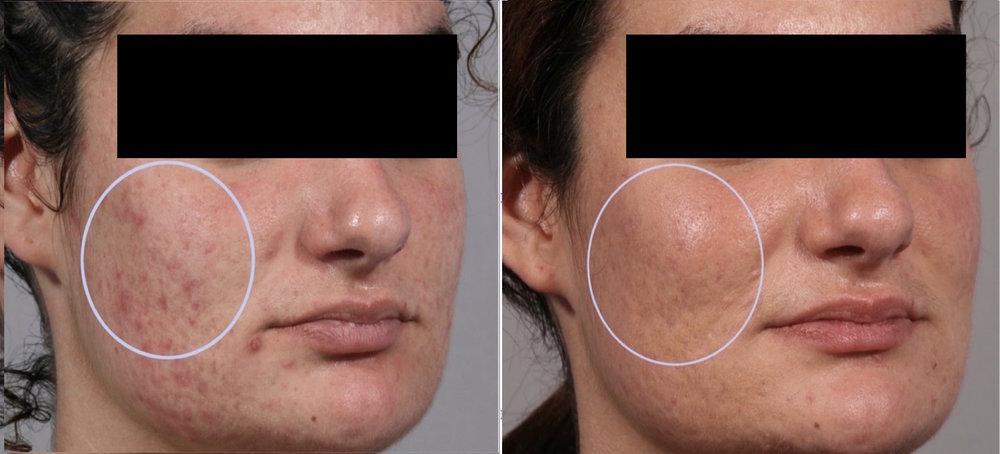 acne9.jpg