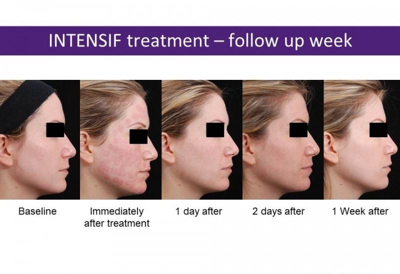 acne12.jpg