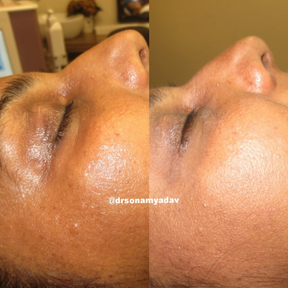 ADVANCED SKIN CARE - POTENT MEDICAL GRADE CHEMICAL PEELS ANDMEDIFACIALS FOR CORRECTION OF UNEVEN PIGMENTATION, DULL SKIN, FRECKLES, TREATMENT RESISTANT MELASMA AND ACQUIRED SKIN TANS.