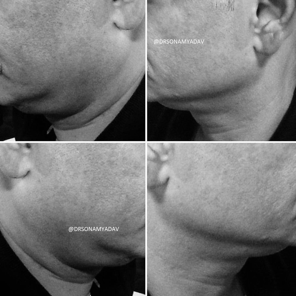 Non Surgical Face Lifts - SINGLE SESSION RESHAPING OF JAWLINES, REDUCING DOUBLE CHINS & TIGHTENING SKIN WITH HIGHLY CUSTOMIZED TREATMENT PLANS, USING MULTIPLE POTENT WORLD CLASS TECHNOLOGIES AT ONCE.
