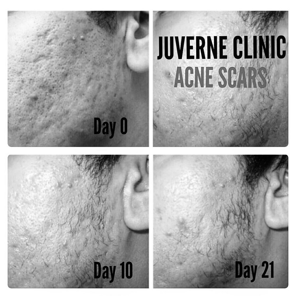 Acne & SCARS - TREAT ALL ASPECTS OF ACNE AND SCARRING USING OUR UNIQUE JUVERNE 360 ACNE PROTOCOL WHICH COMBINES POWERFUL METHODS AND TREATS THE PROBLEM FROM THE ROOT, FOR BETTER RESULTS.
