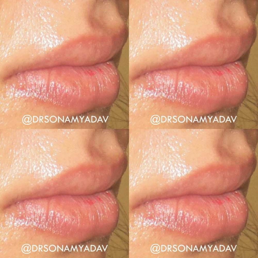 facial harmony - ADVANCED INJECTIONS FOR THE FACE & BODY. BOTOX, FILLERS, PRP & FAT REDUCING INJECTIONS FOR REBALANCING AND BEAUTIFYING THE FEATURES, ENHANCE PROPORTIONS & FIX ASYMMETRY.