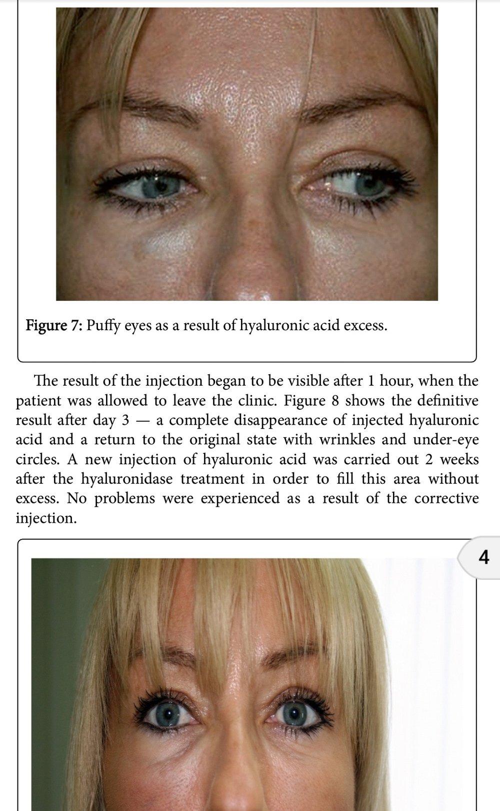 Incorrect Filler Corrected With Hyaluronidase / Hyalase