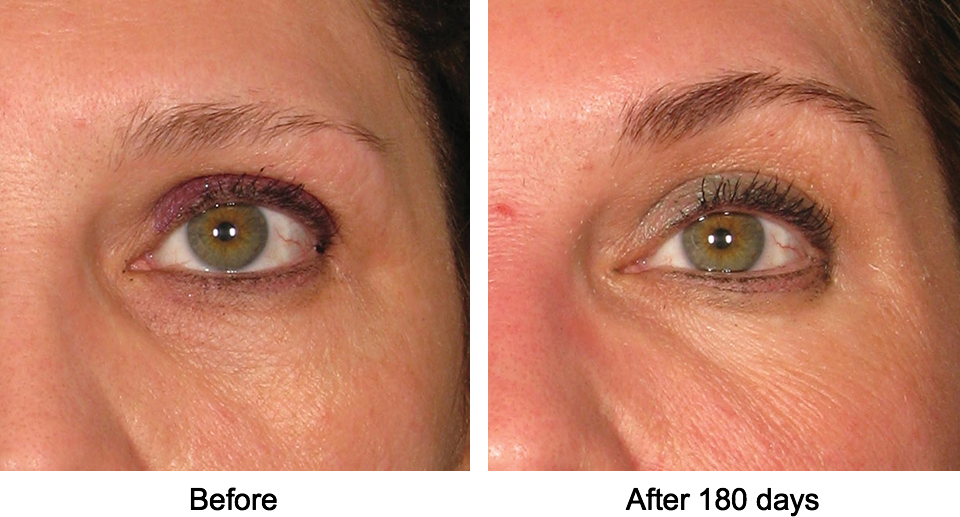 BROW LIFTS FOR BETTER ARCH AND SAGGING EYELIDS - CHEMICAL BROW LIFT using a tiny dose of Botox to relax specific muscle lasts 4-6 months. A dose of filler to augment the orbital bone lifts sagging upper lids and lasts for about 1 year.These can be combined with a PHYSICAL BROW LIFT using ULTRAFORMER which lifts saggy skin. Thread lifts can help further.THICKENING OF BROWS using platelet rich plasma injections is a natural and effective way to improve hair density - without the risks of micro-blading tattoos.