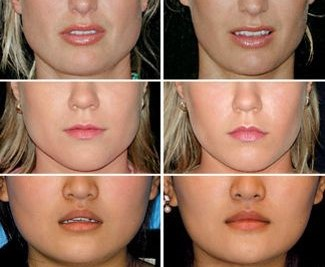 SLIMMING AND V SHAPED FACE - BOTOX can help slim down a square jaw and relieve the pain of teeth grinding (aka bruxism). It works by temporarily relaxing the large jaw muscles on each side, for 6 to 12 months. The MASSETER muscles are responsible for chewing and can become bulky in some people due to teeth grinding / stress related tooth gnashing / excess gum chewing / genetics, causing spasm, pain & jaw widening.SUBTLE CHEEK & CHIN AUGMENTATION can help transform a round face or square face to an elongated chiseled face, if desired.