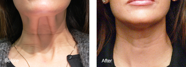 'TECH NECK': BANDS & LINES DUE TO SMARTPHONE USE - BOTOX for the PLATSYMA muscle helps relax unsightly bands that appear as a person talks. For treating the looseness of skin use the MESOBOTOX technique combined with PRP and MICRONEEDLING RF along with the ULTRAFORMER.ENDYMED facials are a good way to painlessly 'iron' thin wrinkly skin and build collagen. 6 to 8 fortnightly treatments are best for results that last 1-2 years.SLIMMING: Sculpting of the area by skin tightening treatments, fat dissolving injections and fat freezing, can improve the gonial angle and submental contour to create a chiseled masculine jawl or tapering female oval face.