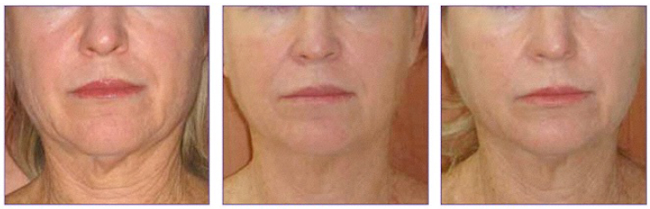 'TURKEY NECK': SAGGING AND WRINKLED SKIN DUE TO AGE - Loss of the fat pads from the neck with thinning of skin, and recession of the chin and jawline bones leads to the impression of a loose hanging neck , similar to the neck of a turkey. ENDYMED 3 DEEP is a safe and effective painless way to improve skin quality and tighten the neck. Addition of SKINBOOSTERS & PRP helps speed up the process and rejuvenate the whole region.