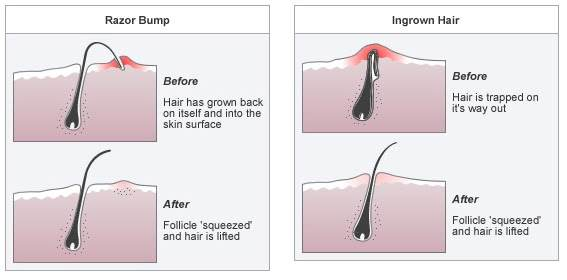 TREATING INGROWN HAIR AND BUMPY SKIN - Laser Hair Reduction is the only method to effectively treat these. For details on Ingrown Hair, Razor Bumps and Laser Hair Reduction, please click here. Oily skin, dandruff and acne can sometimes occur together. Learn more about acne and hormone imbalance. To seek a consultation for scalp and hair related problems call our team.