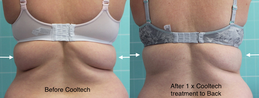 PERMANENT NON SURGICAL FAT REMOVAL - The treatment is painless and has no downtime. We use the latest world class COOL TECH device with ten unique applicators.