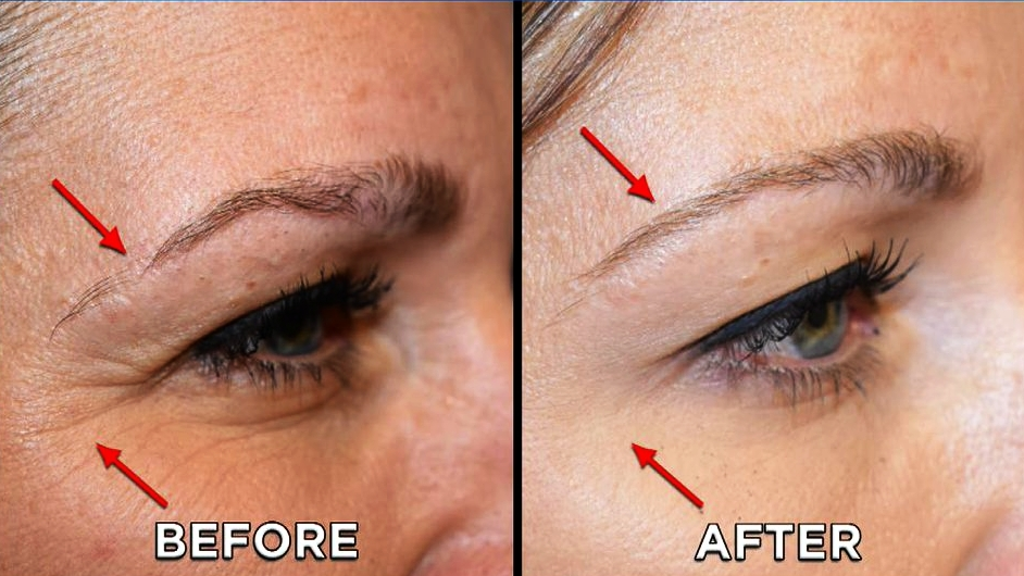 PRP can also be used to achieve thicker and fuller eyebrows / beard. - When used for male-pattern baldness, with receding hairline or thinning over the crown; and in alopecia in women, platelet derived growth factors may stimulate the dormant shrunken hair follicles -  even though the exact mechanism is not fully understood. Most patients need three sessions in a year followed by annual top ups to boost hair growth.
