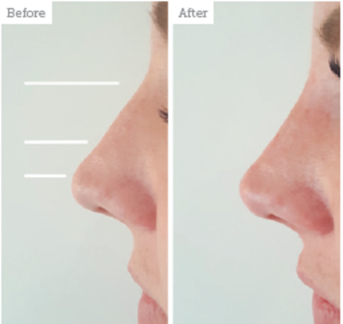 THE NOSE - NON SURGICAL NOSE JOB or INJECTION RHINOPLASTY is the correction of tip drooping, humps or flat/wide noses for cosmetic reasons, using filler & threads.NASOLABIAL FOLDS (nose to mouth lines) and MENTOLABIAL FOLDS (mouth to chin lines) create a tired sad appearance. Lifting the skin with a combination of collagen boosting ENDYMED / ULTRAFORMER & FILLER softens/erases the lines. FILLER & BOTOX in the ala can help create the illusion of a slimmer nose.
