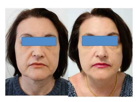 TREATMENTS FOR AGES 45 AND ABOVE - Mature skin needs extra care. Losing moisture and collagen faster than ever, people over forty need potent products & treatments, to preserve skin quality & reverse signs of ageing.Recommended Treatments:Juverne Collagen Booster x 60 minutesJuverne Luxe Tightening x 60 minutesOther suitable treatments:Juverne Ultra LiftJuverne Liquid Lift