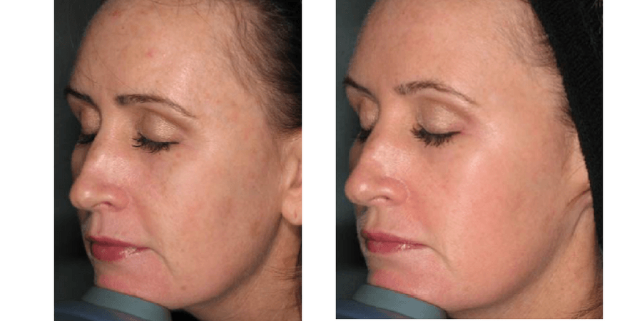 SKIN REFINEMENT - REDNESS & SENSITIVE SKIN: Rosacea, sensitivity & flushing - Telangiectasia (visible small vessels) - Sensitive or irritated; allergy prone skin, dermatitis / eczema - cracks, boils, rash and swelling.