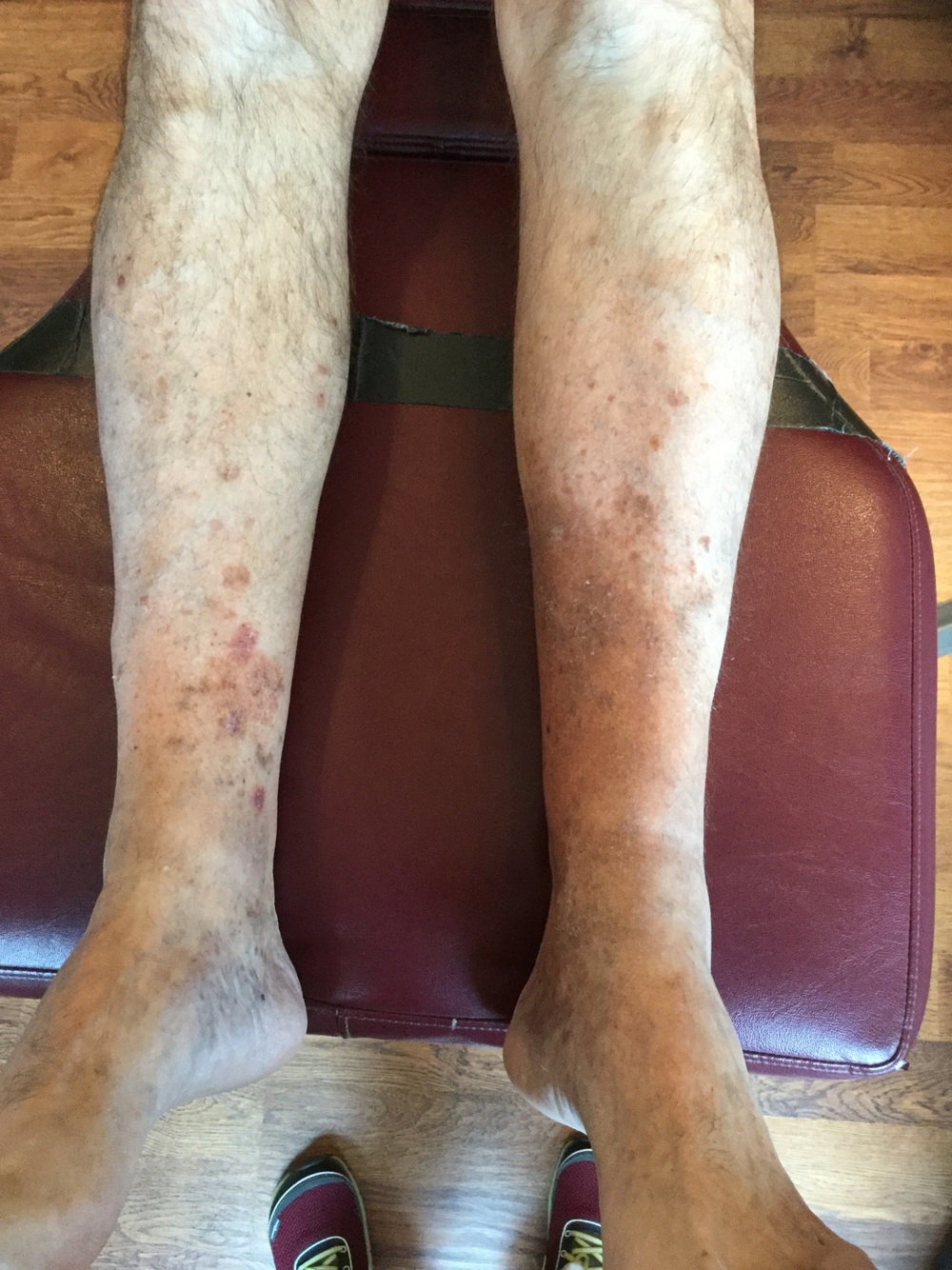"Seen this?   Take a look at these legs. Have you seen anything similar in a client, patient or perhaps yourself? This gent came in with knee pain  and we were looking at his feet. It turns out that this was a reaction to an antibiotic he had taken 3 years ago!  Hyperpigmentation can be caused by bacterial infections, congenital problems, lime Cafe au Lait spots, endocrine disorders, like Addison's disease and hyperthyroidism, hemochromatosis as well phototoxic reactions from the use of systemic or topical antibiotics (1, 2) or from contact with certain plants or foods in conjunction with sun exposure (3).     Often initially, patients develop an reddened skin response caused by an allergic reaction. The inflammatory response often includes lymphocytes, eosinophils, and edema, which can result in a ""blister like"" reaction on sun-exposed skin. Over time, hyperkeratosis and melanocytic hyperplasia (increased numbers of the cells that give your skin pigmentation) develop, causing hyperpigmentation (1).    Some medications result directly in hyperpigmentation, without sun exposure, in a diffuse pattern, like on the gent we see here (4-9). The tables included in reference 2 can provide additional clues  Keep your eyes open! Who knows what the medications may have done to thwart your efforts in the healing response!    Gould JW, Mercurio MG, Elmets CA. Cutaneous photosensitivity diseases induced by exogenous agents.  J Am Acad Dermatol . 1995;33:551–73.    http://www.aafp.org/afp/2003/1115/p1955.html    Friedlander SF. Contact dermatitis.  Pediatr Rev . 1998;19:166–71   Crowson AN, Magro CM. Recent advances in the pathology of cutaneous drug eruptions. Dermatol Clin . 1999;17:537–60.,viii   Pepine M, Flowers FP, Ramos-Caro FA. Extensive cutaneous hyperpigmentation caused by minocycline.  J Am Acad Dermatol . 1993;28(2 pt 2):292–5.   Kelly AP. Aesthetic considerations in patients of color.  Dermatol Clin . 1997;15:687–93.   Goroll AH, Mulley AG Jr, eds. Primary care medicine: office evaluation and management of the adult patient. 4th ed. Philadelphia: Lippincott Williams & Wilkins, 2000   Skin diseases of general importance—part II. In: Cecil RL, Goldman L, Bennett JC. Cecil Textbook of medicine. 21st ed. Philadelphia: Saunders, 2000: 2288–98   Friedlander SF. Contact dermatitis.  Pediatr Rev . 1998;19:166–71."