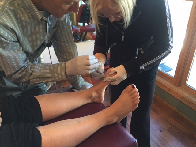 "Dry Needling and Proprioception. What a great combination. Since dry needling and proprioception both have such profound effects on muscle tone, why not combine them to treat chronic ankle instability? We do all the time and here is a FREE FULL TEXT article that ties the two together nicely! And what better to muscle to use than the peroneii? These babies help control valgus/varus motions of the foot and influence plantar and dorsiflexion AND the longus descends the 1st ray. We call that a triple win! ""This study provides evidence that the inclusion of TrP-DN within the lateral peroneus muscle into a proprioceptive/strengthening exercise program resulted in better outcomes in pain and function 1 month after the end of the therapy in individuals with ankle instability. Our results may anticipate that the benefits of adding TrP-DN in the lateral peroneus muscle for the management of ankle instability are clinically relevant as large between-groups effect sizes were observed in all the outcomes."" link to full text http://www.ncbi.nlm.nih.gov/pmc/articles/PMC4430654/ photo from this past weekends Dry Needling Seminar: working on the dorsal interossei"