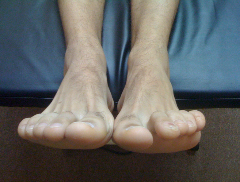 "Unilateral heightened toe extensor tone.   What do we have here ? Well, it is obvious. The left foot is showing increased short extensor tone (EDB: extensor digitorum brevis) and heightened long flexor tone (FDL: flexor digitorum longus). This is the classic pairing for hammer toe development.  We also know from  this post (link)  and from  this post (link)  that this presentation is closely related with lumbrical weakness and distal fat pad migration.    So, at an assessment took we like to play games. Mental games to be precise. When we see something like this we immediately begin the mental gyrations of ""what could have caused this, and what could this in turn be causing"". Remember, what you see is often not the problem, rather your clients compensation around the problem.  In this case, what goes through your mind ?  Without deep thought, our knee jerk thoughts are:     possible loss of ankle rocker dorsiflexion (the increased EDB tone can be recruited to help drive more ankle dorsiflexion indirectly)   plantar intrinsic weakness ?   flip flops or slip on shoes where the heel is riding up and down inside the shoe/sloppy fit ?  (initiating a gripping response from the FDL)   weak tib anterior (recruiting EDB to help)   weak peroneus tertius (recruiting EDB again)   Ankle /foot instability (more FDL gripping will help gain ground purchase)   lateral ankle instablity (same thing, more gripping)   Weak gastrosoleus (since the FDL is a posterior compartment neighbor it can kick into high gear and help with posterior comparment function, we have a whole video case based around this issue,  check this out ! )    premature departure off of the good side leg, and thus an abrupt loading response onto this affected side can challenge the frontal plane of the body and thus require more grip response at the foot level.   how about simple weakness of the lumbricals or FDB , the short flexors. The long flexors will have to make up for it and present like this.     the list goes on and on … .    These are just some quick cursory thoughts, and by NO means a complete exhaustive list.  Just some quick thoughts.   But what about hip function ?  if ankle rocker is blocked in terminal stance and the FDL fire like this what will that do to hip extension ? Well, heel rise will be premature because of the limitation and thus hip extension will be abbreviated. Thus glute function will be impaired to a degree.  This can become a viscous cycle, each feeding off of each other.   This diagnostic stuff is a tricky and difficult game. If you think you can diagnose or fix a problem from just changing what you see you are mistaken, unless you like driving compensation patterns and future injuries into your clients.   There must be a hands on examination and assessment with an intact educated brain attached to the process.   Just some mental gymnastics for you today.     Shawn and Ivo   the gait guys"