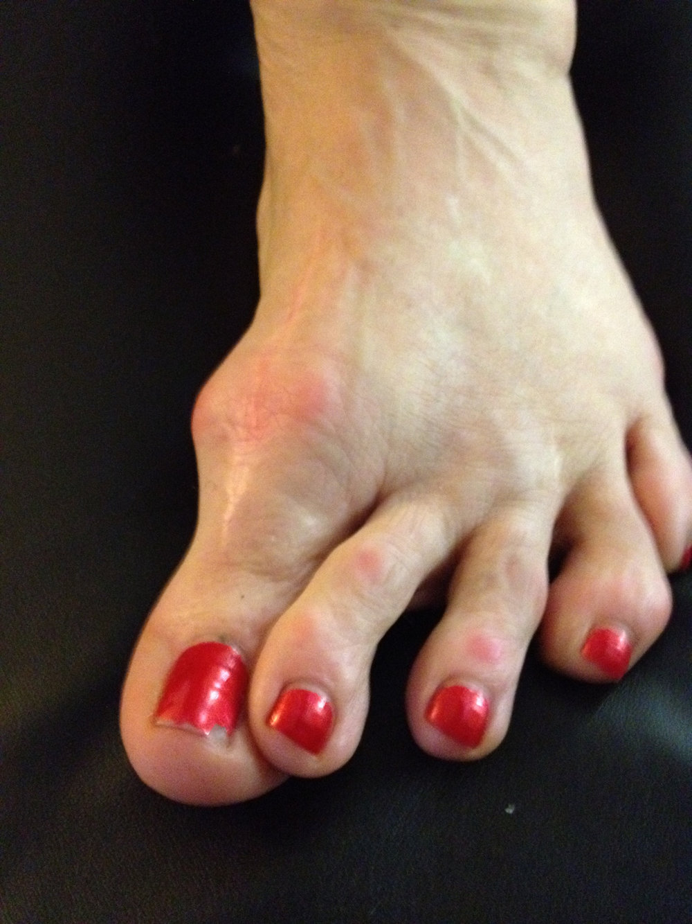 Hallux Varus: The anti-bunion. Thinking of bunion surgery ? This could be a complication if things go sour.    Hallux varus, when the big toe drifts medially, is a real problem. It is typically an acquired problem from a hallux valgus/bunion surgery gone awry.  (This post will not delve into some of the suspected culprits of this problem including   Mc Bride, Scarf, Chevron or Akin osteotomy etc but that would be some of the reader's next steps into diving deeper into this problem. Surgical procedures to the 1st ray was one of the gait guys senior orthopedic residency thesis topics, hence we now hate this topic !).        This deformity can be rigid or flexible.  This case seen in the photo walked into our office recently.  These are not all that common and you won't see many of them, but you do need to know they exist and where they can come from, how to cope with them and what issues you will need to understand (ie. footwear, talked about below) to assist your client.      Hallux varus can be painful, uncomfortable and even debilitating in some cases.  Sometimes they necessitate fixation to realign the hallux bone along a more reasonable alignment with the shaft of the 1st metatarsal.            Early correction seems critical because the linear and rotational forces at work generating the deformity can eventually lead to a further progressing deformity that can be even more problematic. When left unaddressed more drastic and radical corrective interventions seem necessary, including but not limited to,   resection of the base of the proximal phalanx, fusions and tendon transfers. However, newer surgical procedures are coming along proposing things like   reconstruction of the lateral stabilising components of the first metatarsophalangeal (MTP) joint.            So here at The Gait Guys we like to ask the big, and sometimes obvious, questions.  What is toe off in walking and running gait going to look like in this hallux varus case ?  Well, one has to consider that the normal linear and rotational forces are now changed.  This means that the normal eccentric axis of the 1st MPT joint involved is going to very likely be changed. This means that the clearance of the base of the phalanx could be impaired and lead to painful binding, grinding or locking of the toe prior to reaching the adequate range of dorsiflexion for normal toe off. Additionally, the toe may act functionally unstable as the rotational forces remain unchecked leading to joint instability. Naturally, the medial foot tripod will be impaired and since the big toe acts in part like a kickstand to help support and fixate the 1st metatarsal (medial tripod), pronation forces can remain unchecked and beyond normal.  Naturally the foot will attempt to shift the tripod stability elsewhere and often this goes to the 2nd metatarsal commonly found with hammering of the digit in an attempt to help with stability through increased long flexor tone (FDL). Pain with a hallux varus can be a bigger complaint than the unsightly surgical outcome.           There is so much more to this topic. We could go on for at least another 50 pages on this topic (as our thesis reminds us) but volume is not the point of today's task. It was to bring something new to light for our brethren here at The Gait Guys.  In the photo above, you see drift of the lesser toes, seemingly to follow the big toe. What you need to know is that this is not typical, however not impossible one could propose. This client had some other forefoot procedures done that were largely, although not exclusively, related to that lesser digit drift. Regardless, this is a client that is in some amount of foot trouble. They had good mobility of the 1st MTP joint, so full toe off was possible but because of the instability and uncontrollable rotational forces the joint was painful. A simple intervention made her life infinitely more comfortable, moving her into rigid rocker bottomed shoes.  Dansko clogs for work, and ROCS shoes for walking.  This left us with a very happy client. Not bad, all things considered.  In the mean time we will watch for deformity progression even though the patient could not be urged to have another surgery probably even if their life depended upon it.            In summary, being a patient can be difficult. These days, more than ever it seems, one needs to do their homework and be their own advocate.  Prior to surgery several consults should have taken place, risk and rewards should have been discussed, realistic outcomes dialogued and perhaps most of all questioning whether surgery needed to be on the table in the first place. Remember, surgery is most wisely selected in cases of neurologic decline and excessively painful and further detrimental biomechanics (ie. unaddressed ACL deficiency eventually promoting secondary instability with time). If there are ways around either, they should be explored. Cosmetic correction should never be on the table, and in the case of the foot, nor should poor shoe choices that promote problems.