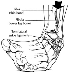 "Functional Ankle Instability and the Peroneals  Lots of links available here with today's blog post. please make sure to take your time and check out each one (underlined below)  As you remember, the peroneii (3 heads) are on the outside of the lower leg (in a nice, easy to remember order of longus, brevis and tertius, from top to bottom) and help to stabilize the lateral ankle. The peroneus brevis and tertius dorsiflex and evert the foot while the peroneus longus plantarflexes and everts the foot. We discuss the peroneii more in depth here in this post. It then is probably no surprise to you that people with ankle issues, probably have some degree of peroneal dysfunction. Over the years the literature has supported notable peroneal dysfunction following even a single inversion sprain event.  Functional ankle instability (FAI) is defined as "" the subjective feeling of ankle instability or recurrent, symptomatic ankle sprains (or both) due to proprioceptive and neuromuscular deficits.""  Arthrogenic muscle inhibition (AMI) is a neurological phenomenon where the muscles crossing a joint become ""inhibited"", sometimes due to effusion (swelling) of the joint (as seen here) and that may or may not be the case with the ankle (see here), or it could be due to nociceptive input altering spindle output or possibly higher centers causing the decreased muscle activity.  This paper (see abstract below) merely exemplifies both the peroneals and FAI as well as AMI. Take home message? Keep the peroneals strong with lots of balance work! The Gait Guys: bringing you the meat, without the filler!                                                                          Am J Sports Med. 2009 May;37(5):982-8. doi: 10.1177/0363546508330147. Epub 2009 Mar 6. Peroneal activation deficits in persons with functional ankle instability. Palmieri-Smith RM, Hopkins JT, Brown TN. Source School of Kinesiology, University of Michigan, 401 Washtenaw Avenue, Ann Arbor, MI 48109, USA. riannp@umich.edu Abstract BACKGROUND: Functional ankle instability (FAI) may be prevalent in as many as 40% of patients after acute lateral ankle sprain. Altered afference resulting from damaged mechanoreceptors after an ankle sprain may lead to reflex inhibition of surrounding joint musculature. This activation deficit, referred to as arthrogenic muscle inhibition (AMI), may be the underlying cause of FAI. Incomplete activation could prevent adequate control of the ankle joint, leading to repeated episodes of instability. HYPOTHESIS: Arthrogenic muscle inhibition is present in the peroneal musculature of functionally unstable ankles and is related to dynamic peroneal muscle activity. STUDY DESIGN: Cross-sectional study; Level of evidence, 3. METHODS: Twenty-one (18 female, 3 male) patients with unilateral FAI and 21 (18 female, 3 male) uninjured, matched controls participated in this study. Peroneal maximum H-reflexes and M-waves were recorded bilaterally to establish the presence or absence of AMI, while electromyography (EMG) recorded as patients underwent a sudden ankle inversion perturbation during walking was used to quantify dynamic activation. The H:M ratio and average EMG amplitudes were calculated and used in data analyses. Two-way analyses of variance were used to compare limbs and groups. A regression analysis was conducted to examine the association between the H:M ratio and the EMG amplitudes. RESULTS: The FAI patients had larger peroneal H:M ratios in their nonpathological ankle (0.399 +/- 0.185) than in their pathological ankle (0.323 +/- 0.161) (P = .036), while no differences were noted between the ankles of the controls (0.442 +/- 0.176 and 0.425 +/- 0.180). The FAI patients also exhibited lower EMG after inversion perturbation in their pathological ankle (1.7 +/- 1.3) than in their uninjured ankle (EMG, 3.3 +/- 3.1) (P < .001), while no differences between legs were noted for controls (P > .05). No significant relationship was found between the peroneal H:M ratio and peroneal EMG (P > .05). CONCLUSION: Arthrogenic muscle inhibition is present in the peroneal musculature of persons with FAI but is not related to dynamic muscle activation as measured by peroneal EMG amplitude. Reversing AMI may not assist in protecting the ankle from further episodes of instability; however dynamic muscle activation (as measured by peroneal EMG amplitude) should be restored to maximize ankle stabilization. Dynamic peroneal activity is impaired in functionally unstable ankles, which may contribute to recurrent joint instability and may leave the ankle vulnerable to injurious loads. all material (except for the study); copyright 2013 The Gait Guys/ The Homunculus Group. All rights reserved. Please ask before you lift our stuff. If you are nice and give us credit, we will probably let you use it!"