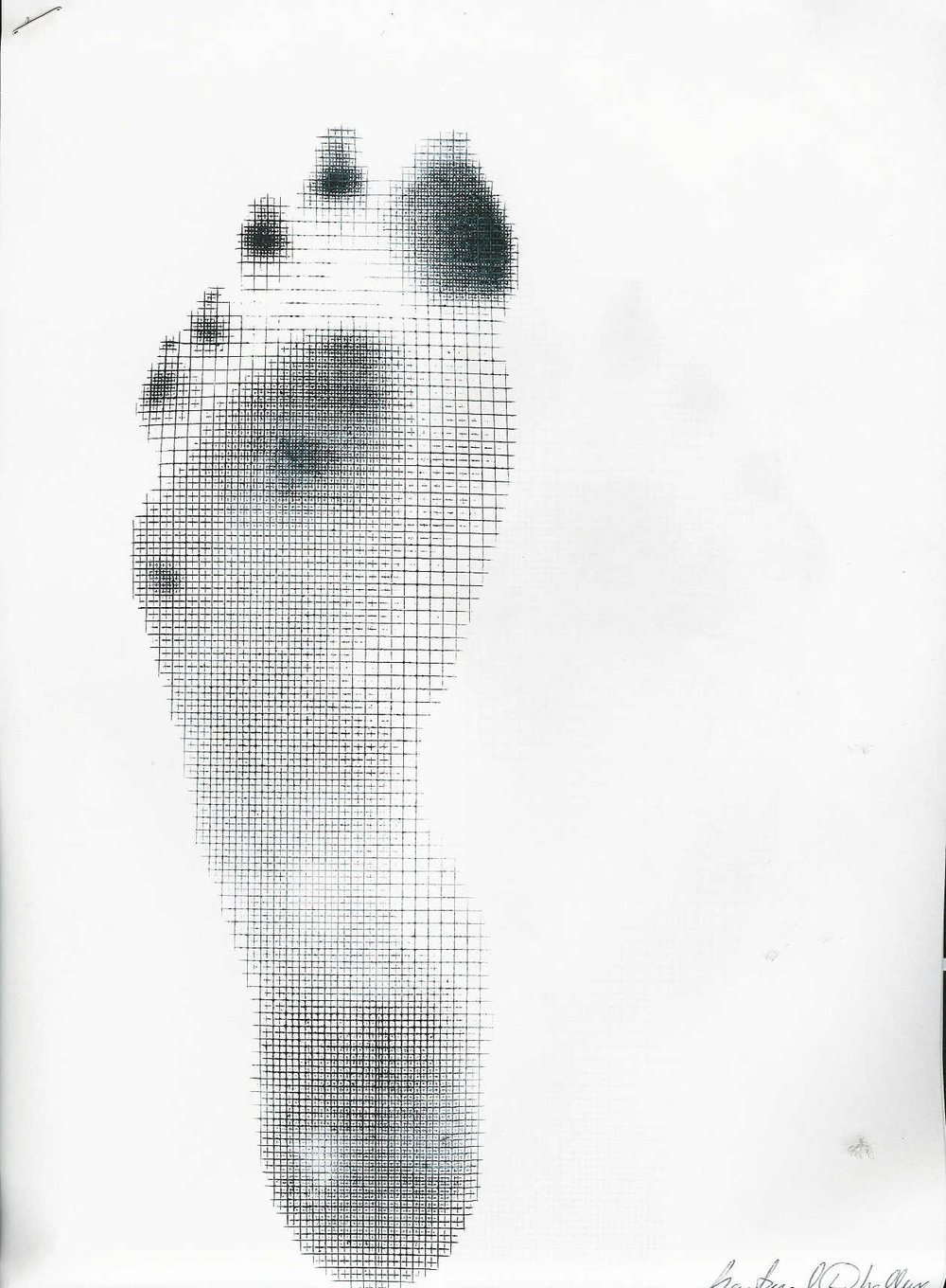 So what can you tell us about this foot?    Hmmm. Pedograph again….You guys must think this is important, eh? You bet!  The best $150 dollars you will spend and one of the best education (and sales) tool you can buy.   So, back to the foot. Lets divide it into 3 sections; the rearfoot, the midfoot and the forefoot.   What do we see in the rearfoot? plenty of pronation, that's for sure. How do you know? Look at the width of the print and the elongation of the heel print medially; ideally it is shaped like a teardrop. You would expect to see the calcaneus tipped into valgus (eversion) wile standing. What else? A heavy heel strike; look at all that ink!  Next, the midfoot; Lots of printing here = lots of midfoot pronation. Look at how the 2nd and 3rd cunieforms and cuboid print. This much ink under the cuboid means that the peroneus is having a hard time everting and assisting in supination  of the foot.   The forefoot? We see ink under met heads 2, 3 and 5, but not under 1.Looks like they can't get the head of the 1st metatarsal down. This would lead us to believe they have an uncompensated forefoot varus (forefoot inverted with respect to the rearfoot). What about the toes? looks like overactivity of the long flexors to us, including the flexor hallucis longus (the brevis would only print more proximally; see our post here). This activity is probably to try desperately to stabilize the obviously unstable foot.  Where do you begin? Lots of diligent work on the clients behalf, maybe consider an orthotic that you can slowly pull the correction out of as they improve, to give them mechanics they don't have. How about the tripod? Increase mobility of that 1st ray and get the 1st met head down and help to keep it there. Mobilization/manipulation, toe waving, tripod standing are a good start. Next tone down some of that long flexor tone. How about some more tripod standing, toes up walking and some shuffle walks. The intrinsics are next, and so on.   Yes, you should own a pedograph.  Need one? One of our friends (Another Shawn) can get you one. contact him at:  303 567 2271   You be able to interpret a pedograph. It provides a window to the gait cycle unlike any you have seen. Need help? Search our blog here with hundreds of examples, go to our Youtube channel and watch some of our great, free videos.   Thirsty for more? We have THE ONLY book published (as far as we know) on them exclusively and you can get it by  clicking here . We are told by our publisher that it is being converted to e-book format, but have not been given a conversion date.     Ivo and Shawn. Articulate. In your face. Pushing your limits daily. Changing the way the world looks at the feet and gait.       all material copyright 2012 The Homunculus Group/The Gait Guys. All rights reserved. If you use our stuff without asking us, we WILL find you and and send Toelio to deal with you.