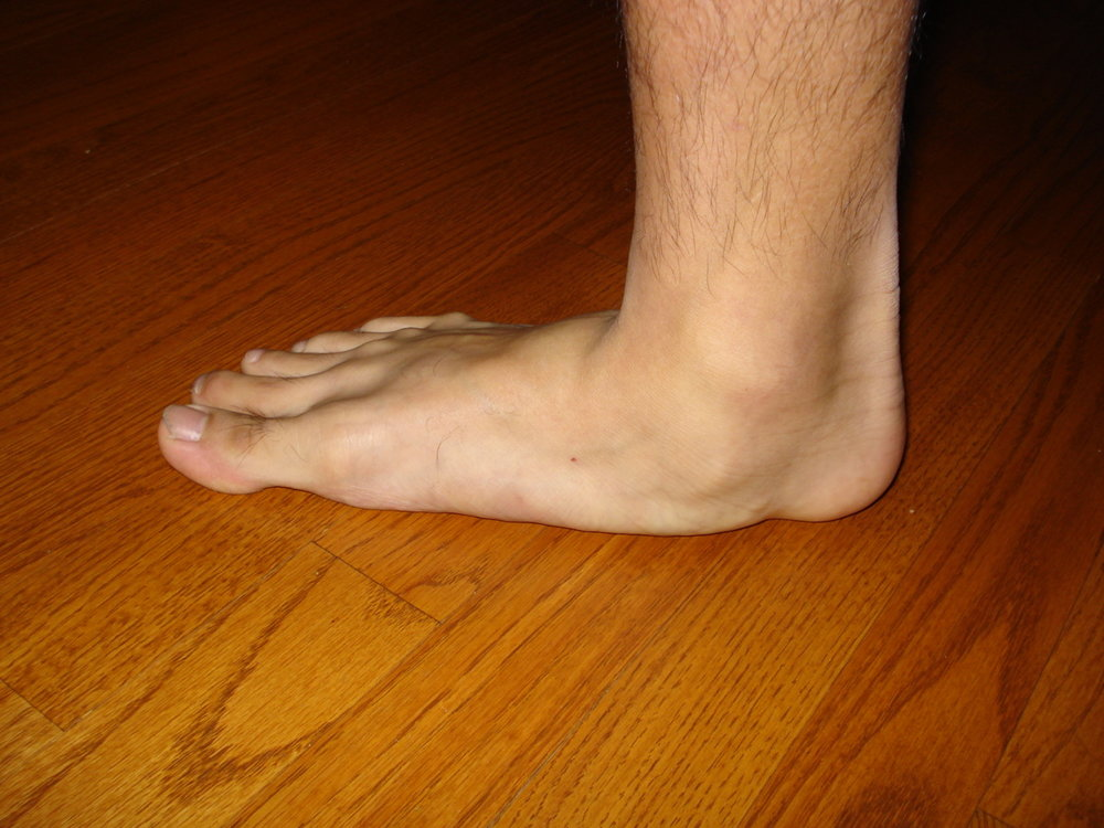So, is this foot a flexible flat foot or is it a rigid flat foot ? You need to know.   today's blog post should help you in some thinking.