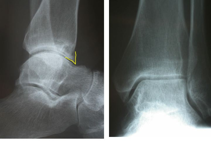 Footballer's Ankle (follow up on the iWalk Powerfoot): This is clinical condition which is most often present in those who have engaged in kicking sports for a number of years. As in soccer, the striking of the ball forcefully in a plantarflexed position can generate a traction apophysis (bony tubercle) from the repeated traction stress put on the anterior ankle capsule and ligaments.  This tubercle can form a spur that can act like a door stop impeding any further ankle dorsiflexion (rocker). Footballers ankle manifests itself with pain at the front part of the ankle joint. Soft tissue can become trapped at this anterior joint aspect and produce localized pain. IT will look like a normal degenerative spur, but the clients age and activity will help clarify the diagnosis and pathogenesis.