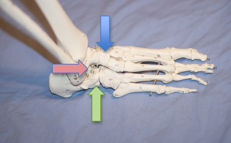 image from: http://www.aofas.org/footcaremd/treatments/pages/triple-arthrodesis.aspx