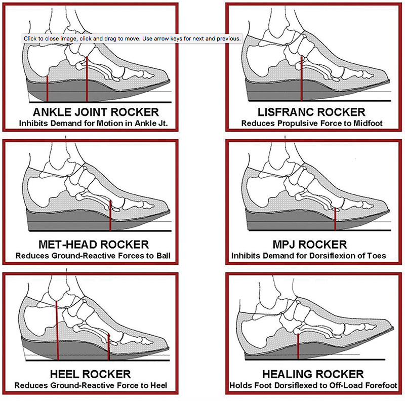 Images illustrate different types of rockers, with fulcrum locations indicated by vertical red lines. (Images courtesy of Arnie Davis, CPed.) via LER magazine: https://lermagazine.com/article/rocker-bottom-footwear-effects-on-balance-gait