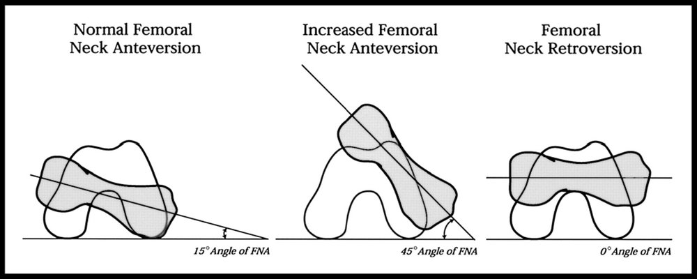 IMAGE SOURCE: Michael T Cibulka; Determination and Significance of Femoral Neck Anteversion,  Physical Therapy , Volume 84, Issue 6, 1 June 2004, Pages 550–558,  https://doi.org/10.1093/ptj/84.6.550