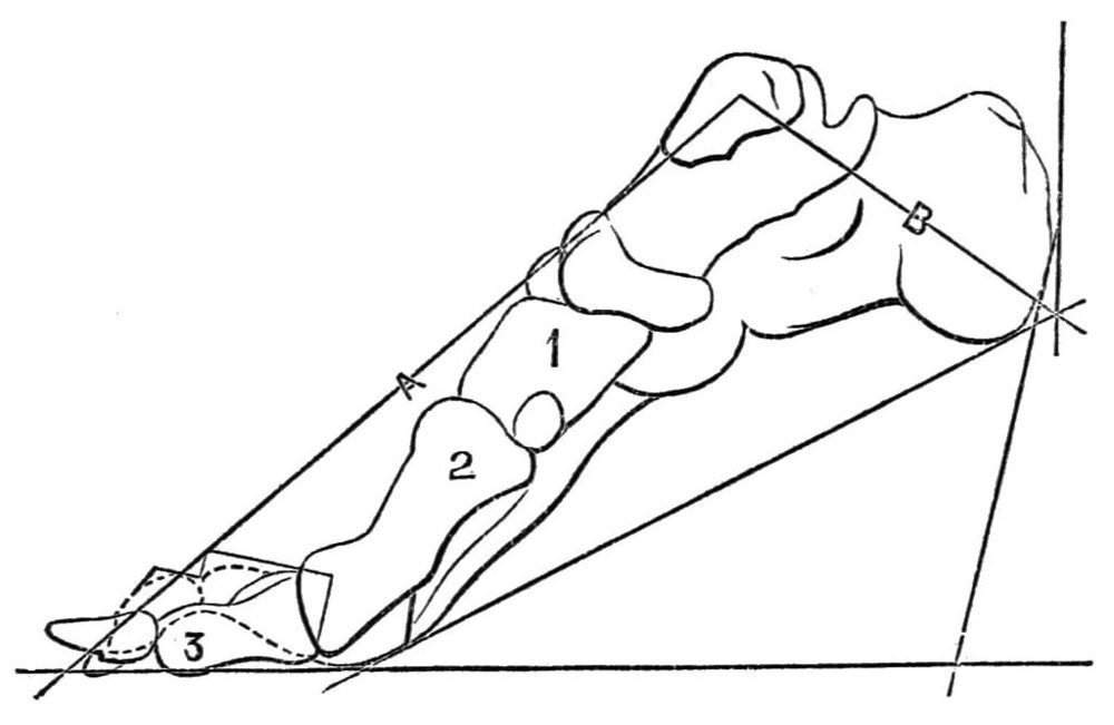 PSM_V24_D673_Deforming_pressure_of_high_heels_on_the_foot_bone_structure.jpg