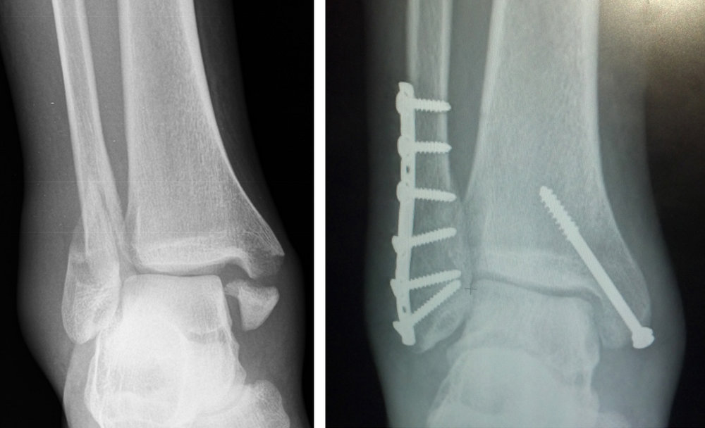 image source: https://commons.wikimedia.org/wiki/File:Trimalleolar_Ankle_Fracture.jpg