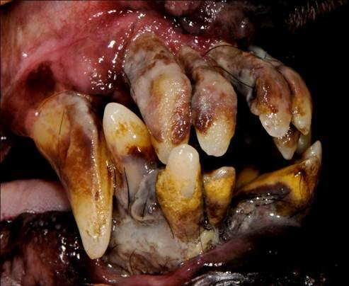 Severe periodontal disease