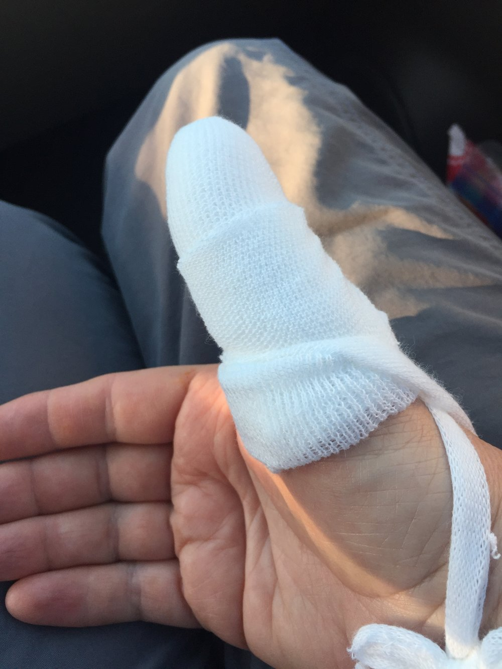 thumb - after