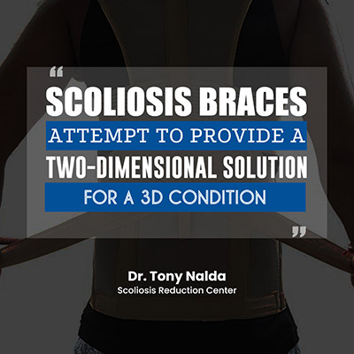 scoliosis braces attempt to provide a two dimensional solution for a 3d condition