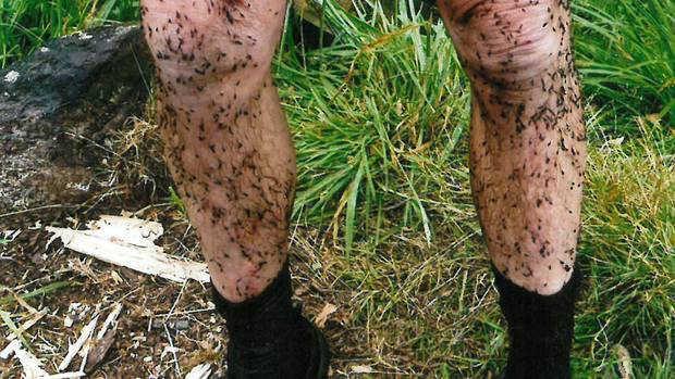 No, these are not bugs - this Wanganui tramper's legs are covered with the dreaded hook grass