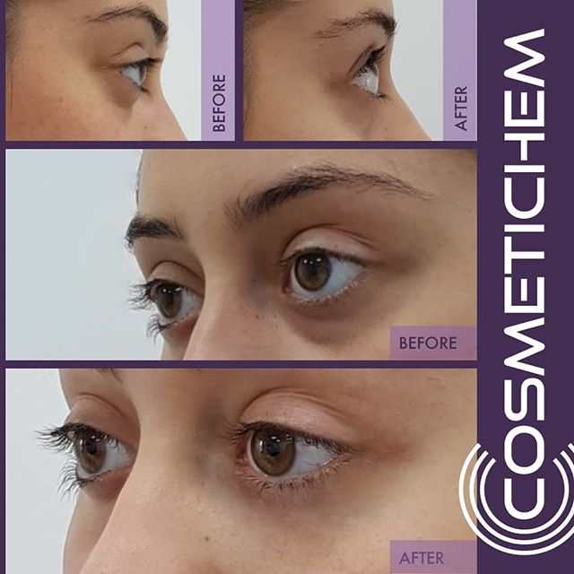 Tear troughs  Filler: 1ml Duration: 45 mins Price: £420 Longevity: 12-18 months Pain: 2/10 Downtime after treatment: 0 days  Dm for enquiries. All our treatments are carried out by fully qualified medical professionals  This patient had a genetic hollowing of the eyes causing a tired look which required the use of a lot of concealer. The treatment was carried out using a cannula method which caused no bruising or swelling. After pics were taken immediately after treatment showing a profound improvement in the tear trough region.