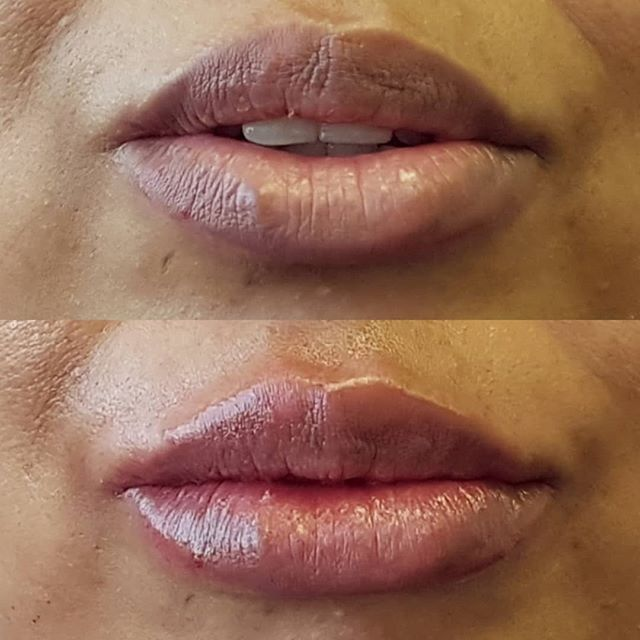 "Before and after for lips Filler: 1ml Treatment time: 30mins Pain level: 4/10 Longevity: 6-12 months Price: £250  DM for enquiries. Book in for a free full facial consultation today!  This patient requested a very natural look which didn't look ""over-filled"". She requested an improvement in definition and correction as well as a slight increase in fullness. After pic taken straight after treatment.  All our work is carried out by fully trained medical practitioners."