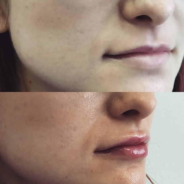 Before and after for another set of lips! More volume and definition, just what the patient wanted! . . . #skincare #botoxtreatment #skinbotox #radiantskin #youthful #skincare #softskin #skincaretips #healthyskin #facialtreatment #beautifulskin #filler #beauty #restylane #juvederm #dysport #skincare #allergan #collagen #antiaging #fillers #cosmeticsurgery #enhancements #lipaugmentation #aesthetics #antiaging #beauty #lipenhancement #cosmetics #beforeandafter