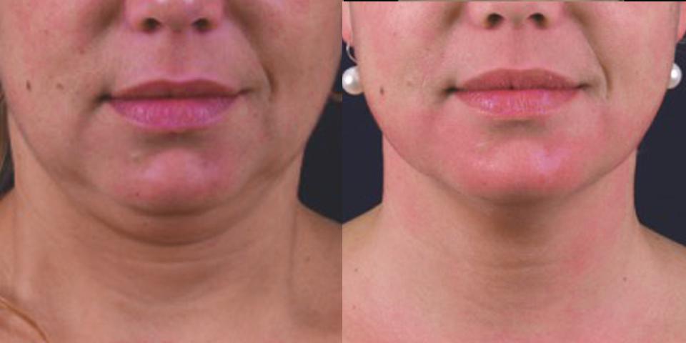 Facial Rejuvenation -